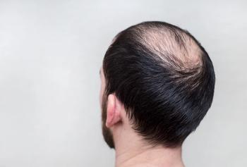 Game-Changers Advance Hair Loss Treatment