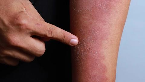 Molecular study highlights drug differences in atopic dermatitis