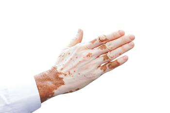 Phase 2 Study of Ruxolitinib Cream for Vitiligo Announces New Findings