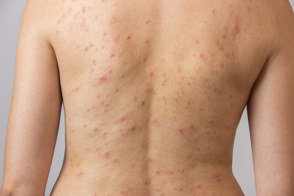 Trifarotene Cream Proves Safe Effective For Acne Vulgaris