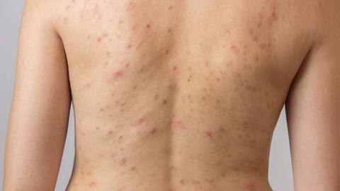 Topical combination helps clear truncal acne