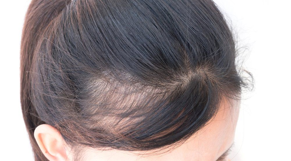 Medical Innovation Expands Hair Loss Treatment Dermatology Times And Multimedia Medical Llc
