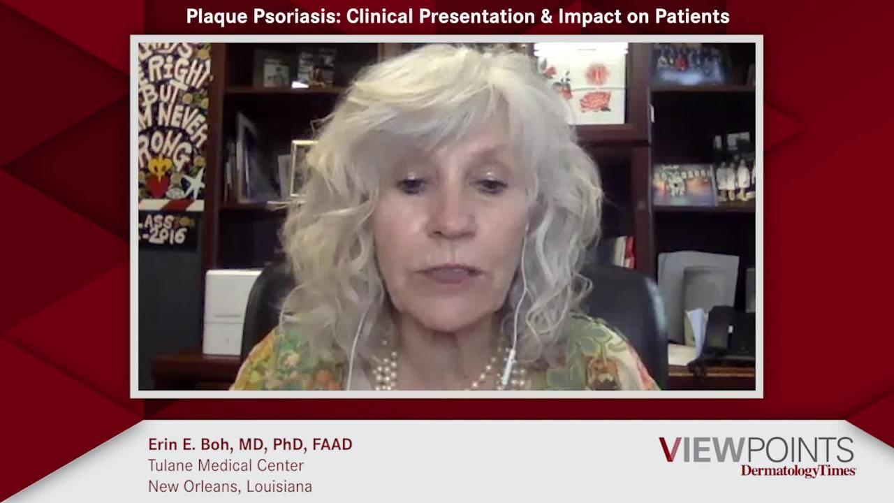 plaque psoriasis videos