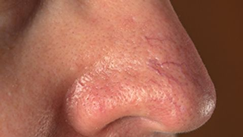 Study evaluates topical plus device for rosacea treatment