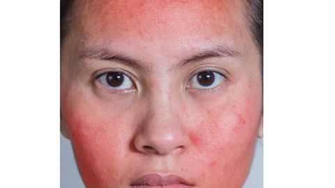 Patients with cutaneous lupus erythematosus susceptible to other autoimmune conditions