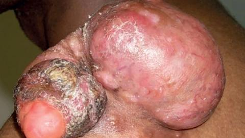 Rare tumors and fibrotic skin lesions