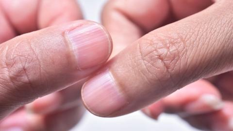Tips on treating nail problems