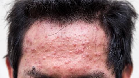Expert offers insight on isotretinoin use
