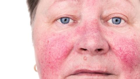 Oxymetazoline, pulsed dye laser show promise for rosacea