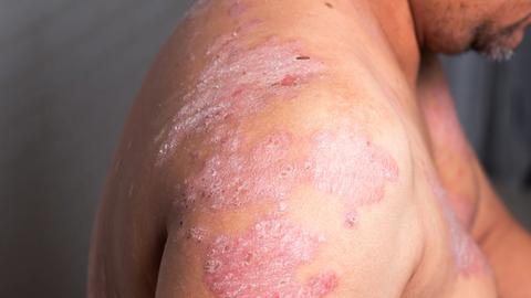 Guidance on transitioning psoriasis patients between biologics