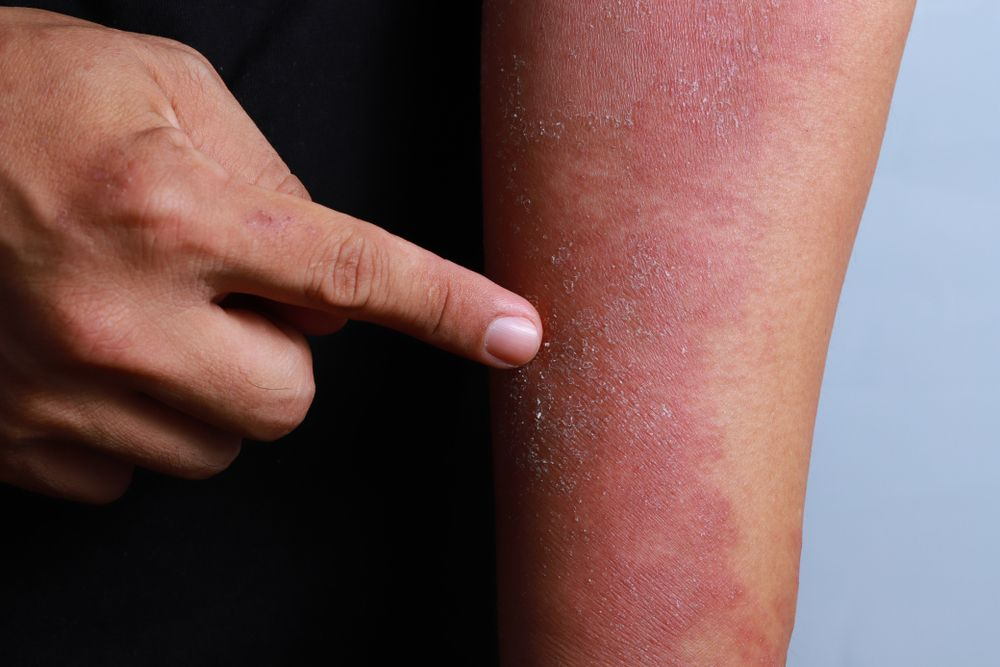 eczema causes adults