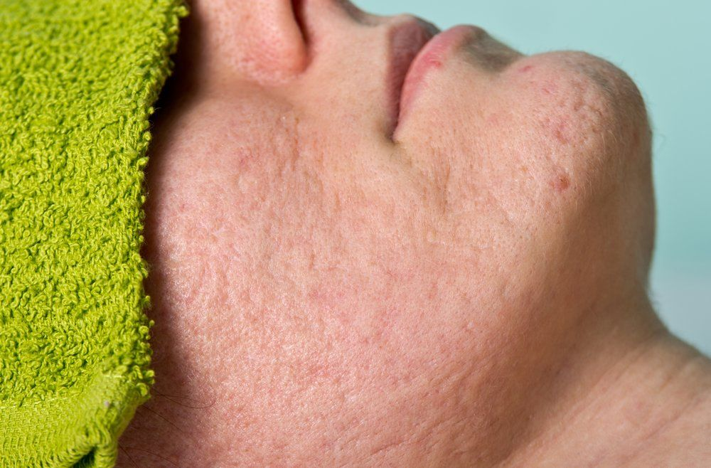 10 Treatments For Acne Scarring