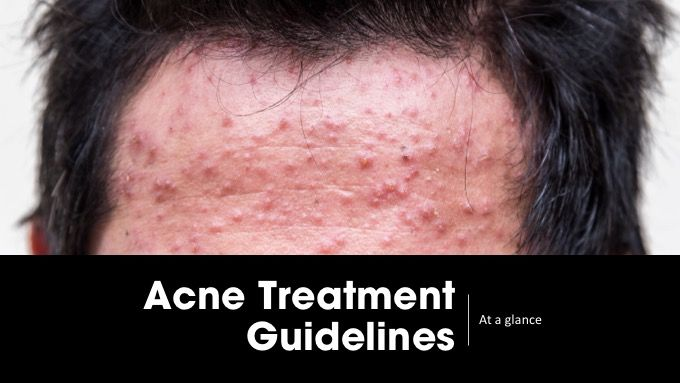 Acne treatment guidelines