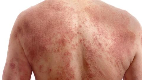 IL-17 potential therapeutic target for pustular psoriasis