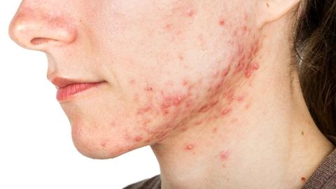 Are you equipped to identify depression in your acne patient?
