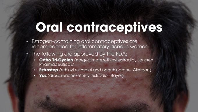 Oral contraceptives for acne
