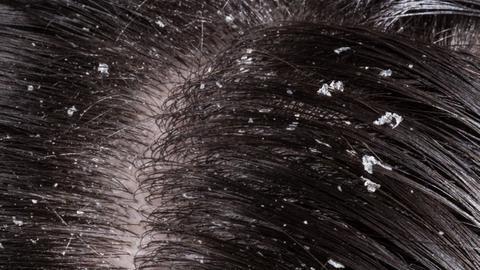 How to treat hair hang-ups