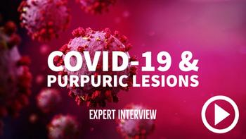 This skin lesion may signal severe disease in COVID-19 patients