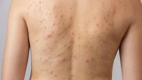 Acne mechanica caused by skin on skin friction