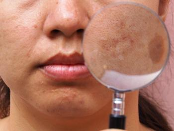Novel, Non-prescription Regimen Improves Hyperpigmentation
