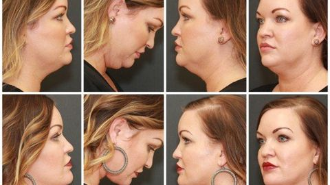 There's more than one way to rejuvenate the neck