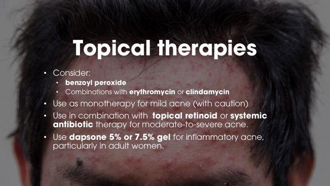 CASPAR criteria psoriatic arthritis