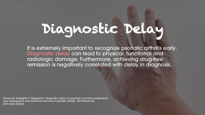 psoriatic arthritis diagnosis