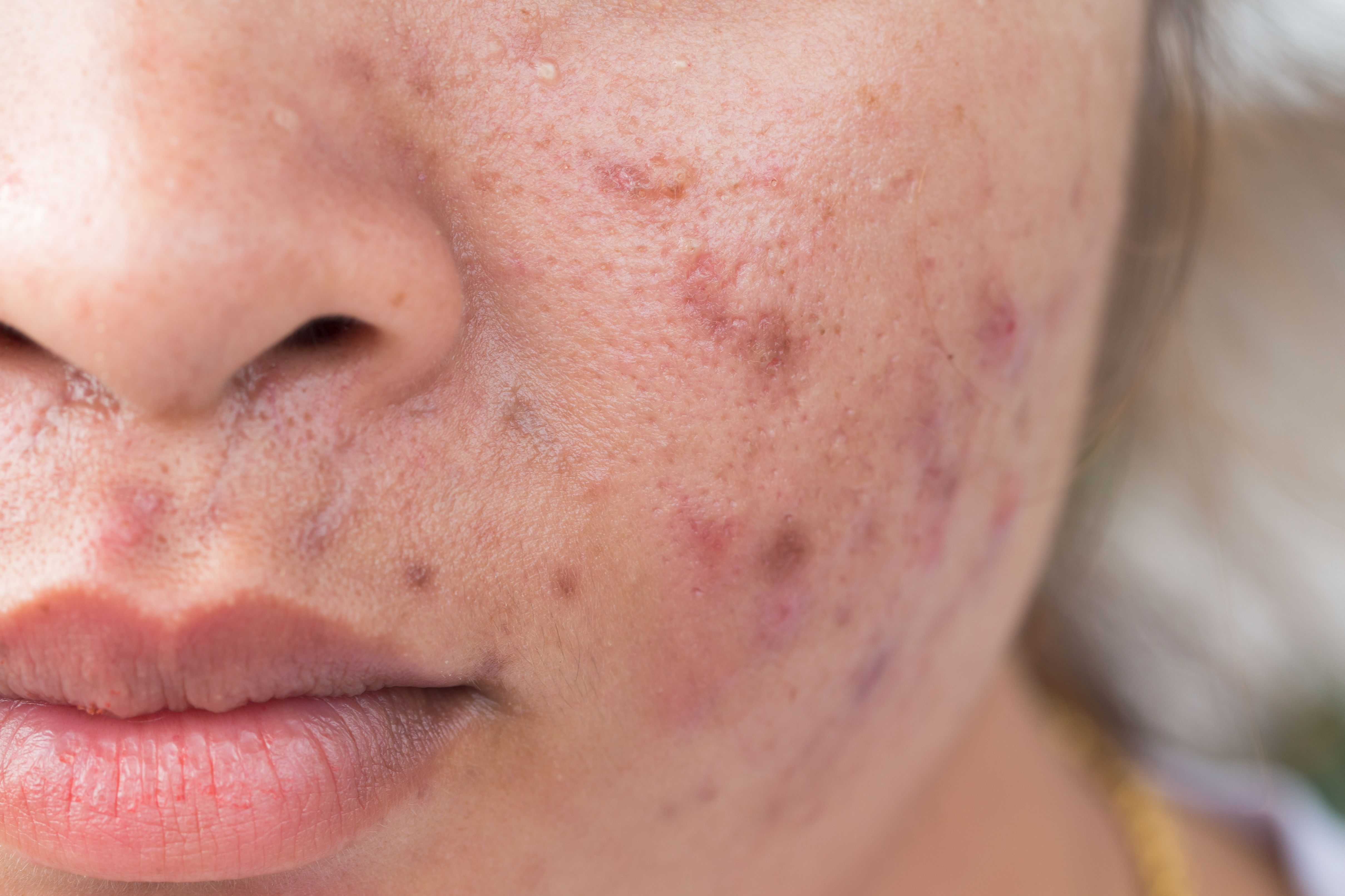 Minocycline As Foam Topical Under Study In Acne