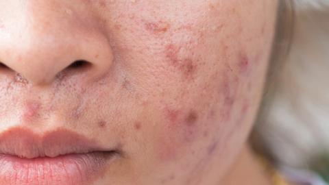 Acne patients open to antibiotic-free treatment