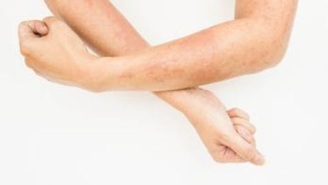 JAK-STAT inhibition an attractive target for atopic dermatitis drugs