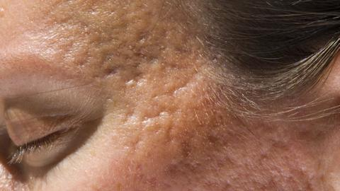 Aggressive, early treatment may prevent acne scars