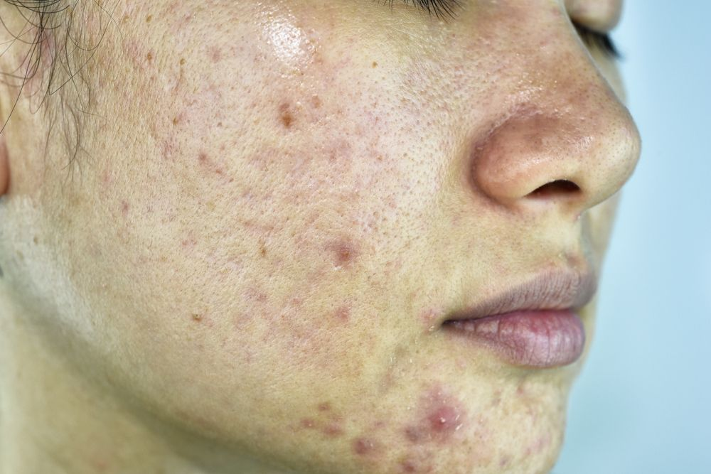 Natural Extracts Outweigh Synthetic Antibiotics For Acne Treatment