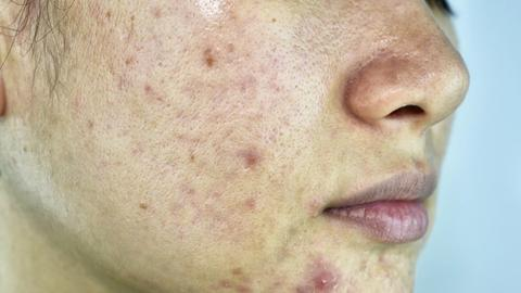 Psychological stress as acne cause