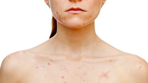 Sarecycline approved for moderate-to-severe acne