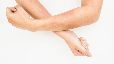 Infection risk lower with some systemic treatments for atopic dermatitis
