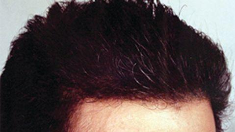 Hair transplantation outcomes improve