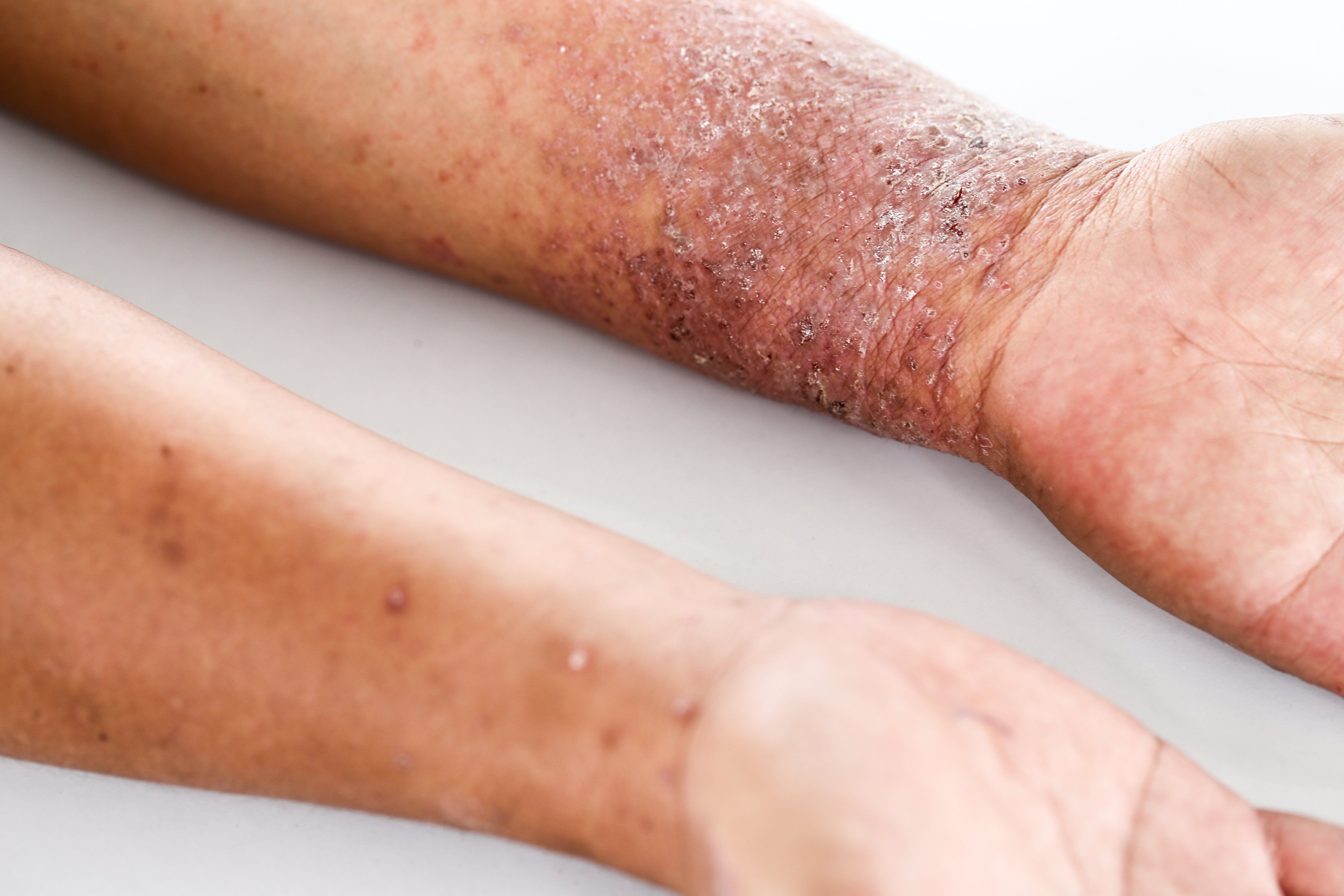 atopic dermatitis on arms