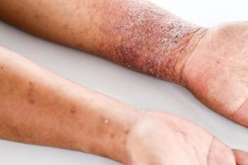 Systemic Therapy Advances for AD