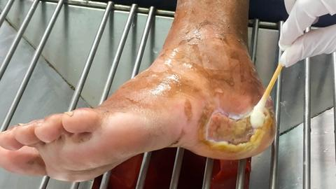 Mycobiome contributes to impaired wound healing