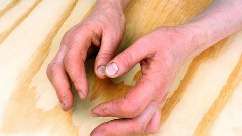 IL-23 guselkumab significantly improves symptoms in psoriatic arthritis