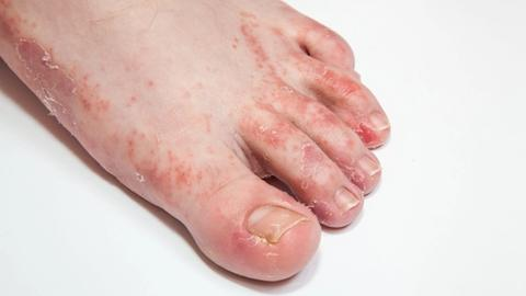 Over the counter options for foot dermatoses