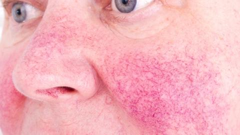 Nature-based skin care effective as adjunct to prescription rosacea therapy