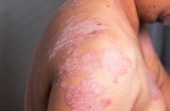 Bimekizumab Beats Secukinumab in Skin Clearance for Psoriasis