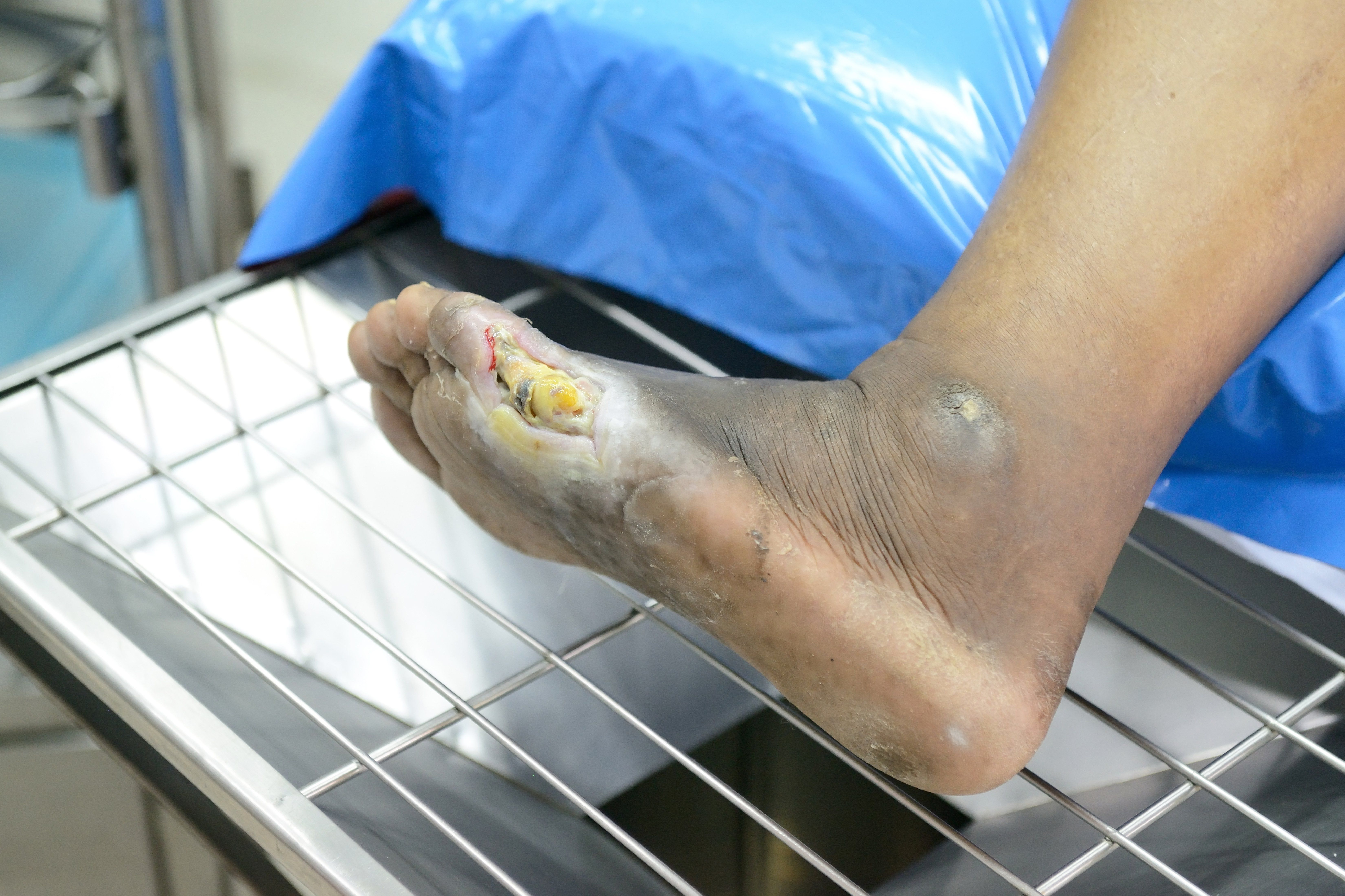 Classifying Diabetic Foot Ulcers Dermatology Times And Multimedia Medical Llc