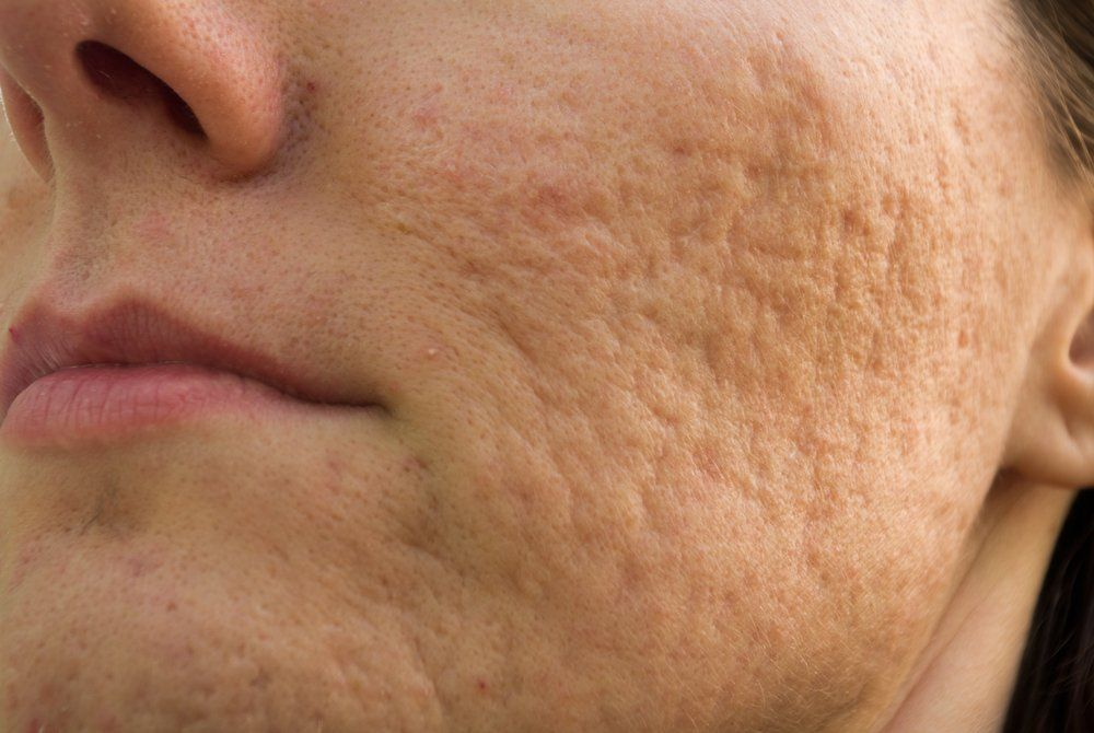 Topical Treatment Reduces Scar Formation In Acne Dermatology