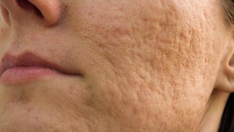 Adjunctive platelet-rich plasma may improve acne scars