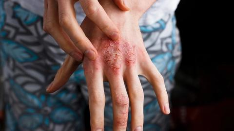 Dupilumab offers safe, long-term option for atopic dermatitis