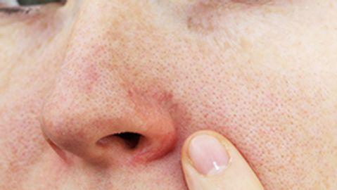 An examination of rosacea treatment satisfaction