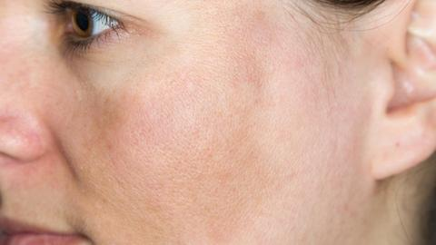 Stem cell factor inhibition for hyperpigmented skin