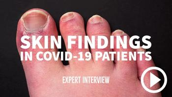 Skin findings in patients with suspected COVID-19
